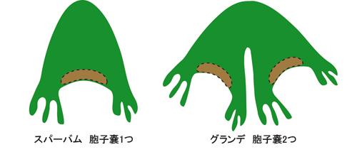 ビカクシダ スパーバム グランデ 胞子葉の違い 図示